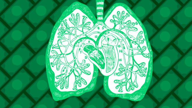 Kaggle hosting $1M competition to improve lung cancer detection with machine learning